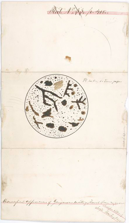 This is What United States Sanitary Commission and Pl. No. 5 of Dr. Jones papers : Microscopical appearances of gangrenous matter of femoral vein. Ma[g] 430 [diameters] Looked Like  in 1861