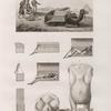 Chirurgie. 1-7. Vue et détails de paniers propres au transport des blessés; 8.9. Sarcocéles d'homme et de femme.