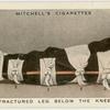 Fractured leg below the knew.