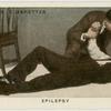 Epilepsy.