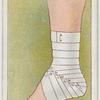 Roller bandage.
