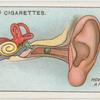 Foreign body in ear.