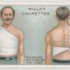 Triangular bandage for chest.