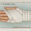 Bandage for sprained wrist.