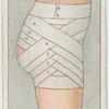 Spica bandage for hip.