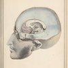 [Interior of skull]
