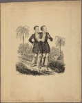 Pair of conjoined twins, standing, each with an arm around the other