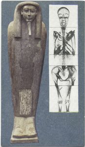 Egyptian mummy X-rayed.