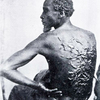 The Scourged Back - The furrowed and scarred back of Gordon, a slave who escaped from his master in Mississippi and made his way to a Union Army encampment in Baton Rouge, Louisiana, 1863.