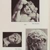 Barberinischer Satyr; Schlafender, Kopf; Erinye, Kopf.