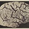 Circonvolutions du cerveau.