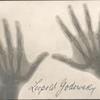 Leopold Godowsky's hand x-rays [no. 51]